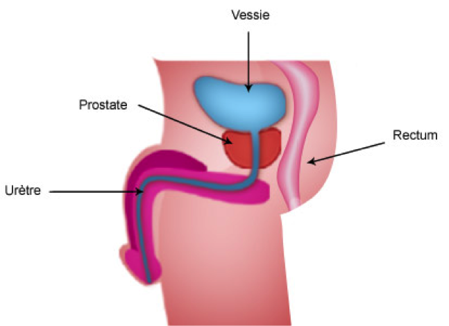 Prostate Cancer Radical Prostatectomy Colmar Urology Centre